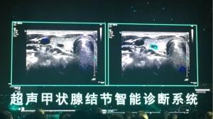 阿里云发布ET医疗大脑 用万张超声片培养高智商医生助手