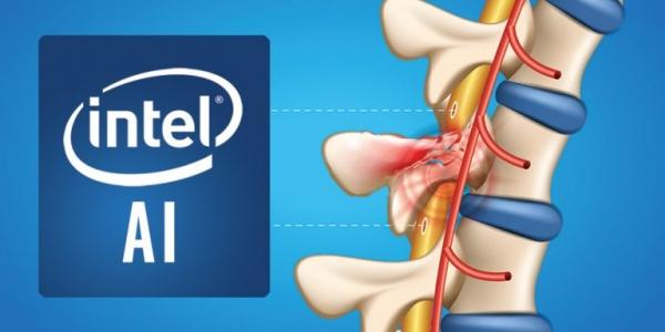 英特尔和布朗大学的研究利用人工智能治疗脊髓损伤