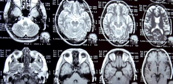 88304的医学影像诊断率超过人类医生