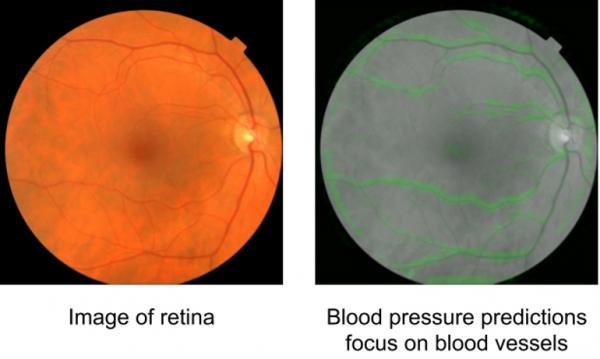 谷歌AI可以通过眼部扫描预测心脏疾病风险