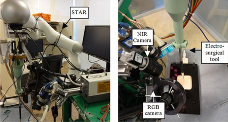 你知道么?机器人打败了外科医生 未来将接管手术室和你