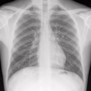 AI再出力,可通過胸部X光片檢測新冠
