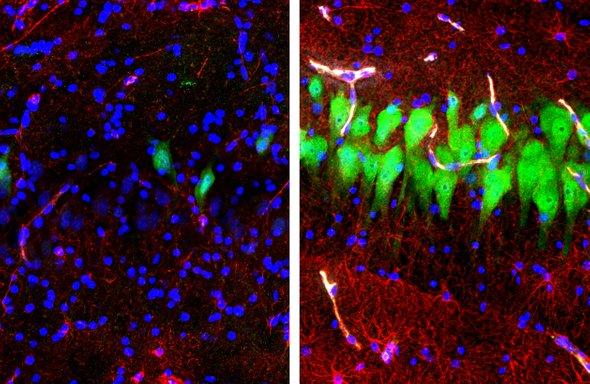 科学家让脑死亡大脑重生:探索生死之间的模糊地带