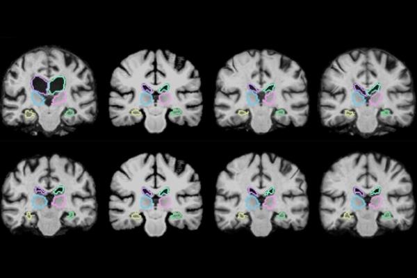 麻省理工学院开发可在一秒内完成MRI扫描的神经网络