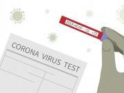 生物科技大神Rothberg正着手开发新冠病毒家庭测试套件